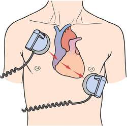 after pettys death lets look at easy to use heart defibrillators or aeds american council on science and health