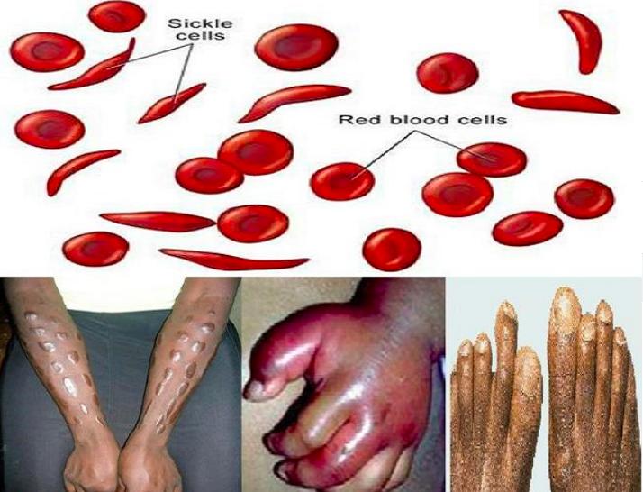 Серповидно клеточная анемия картинки