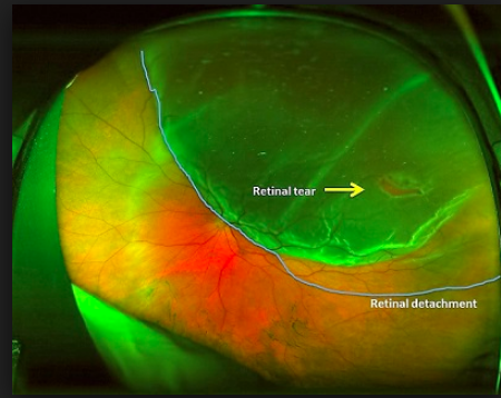 Zap! Laser Repair Of Your Torn Retina: An Interview With