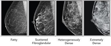 Mammograms and glandular breast tissue
