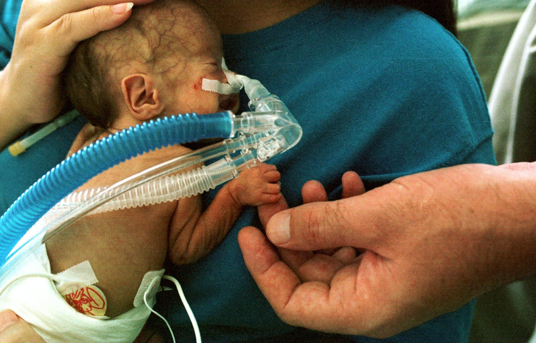 Neonatal Nurses Do Way More Than Hold Babies