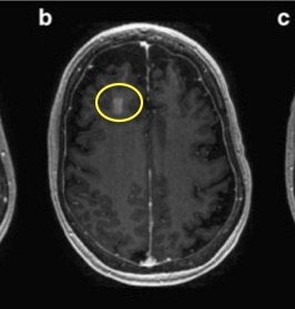 What's the Blood-Brain Barrier & How Do You Cross It