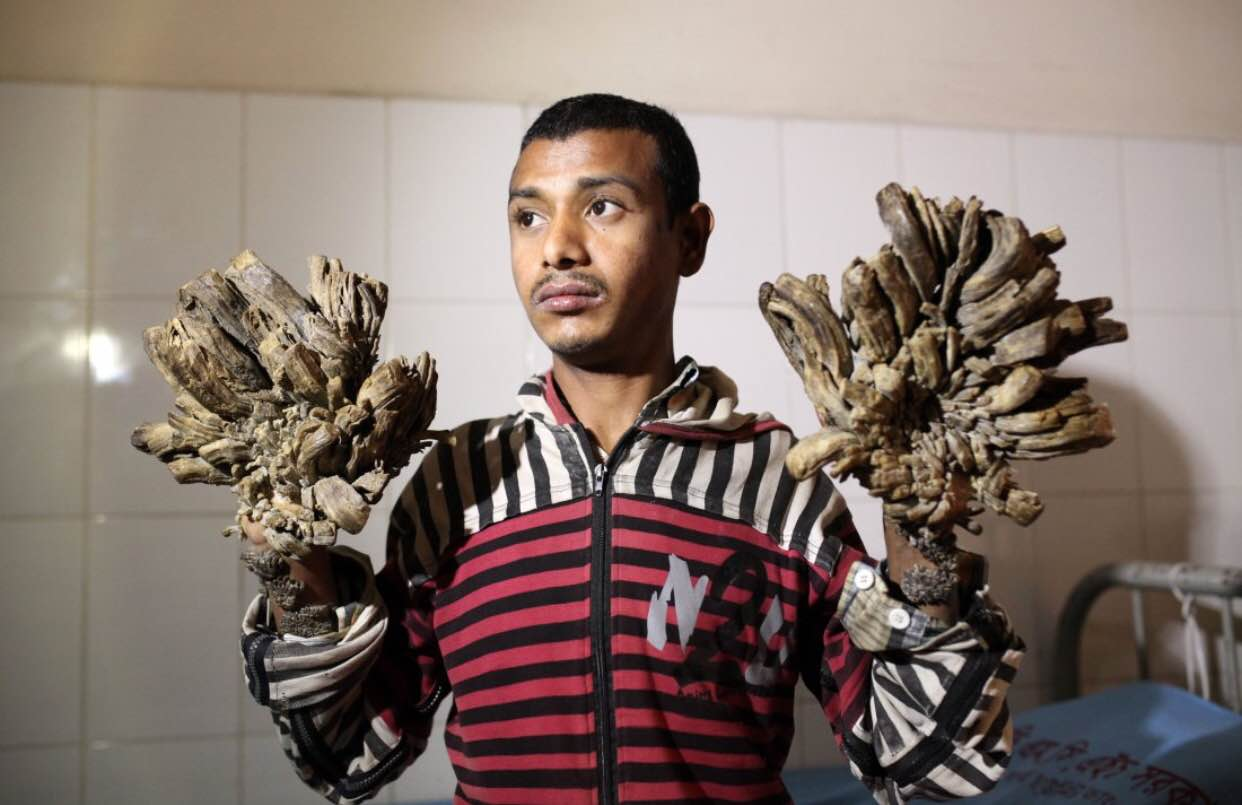 Headlines Suggest 'Tree Man Syndrome' Curable? | American Council on