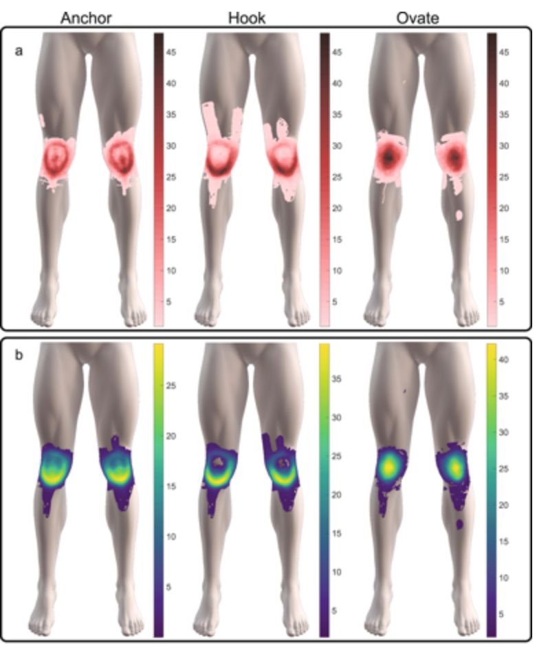 3 Patterns Of Knee Pain May Help Identify The Cause American
