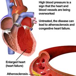 The best means of treating high BP remain elusive