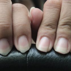 Do Discolored Nails Mean Something? | American Council on ...