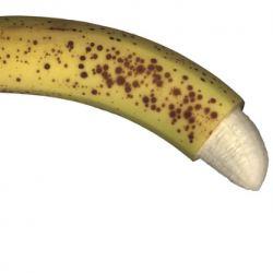 The benefits of circumcision